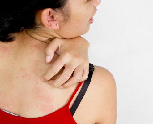 Phoenix Allergist Skin Conditions